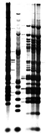 Thumbnail of Restriction fragment-length polymorphism analysis for isolates from patients and hot tub. Lane 1: Mycobacterium avium CDC #91-9282, serotype 4. Lane 2: M. avium CDC #91-9285, serotype 10. Lane 3: M. avium CDC #91-9299, serotype 8. Lane 4: Hot tub isolate. Lane 5: Isolate from Patient 2. Lane 6: Isolate from Patient 3. Lane 7: Isolate from Patient 1.