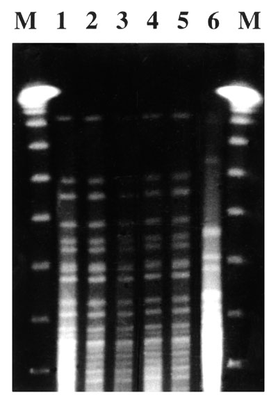 Pulsed-field gel electrophoresis patterns of Vibrio cholerae isolates. DNA molecular weight markers (M lanes); V. cholerae strain isolated from water (Lane 1); V. cholerae showing isolates from patients (Lanes 2-5); V. cholerae strain 01 El Tor from the Spanish type culture collection (Lane 6).