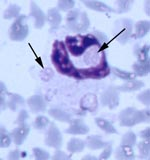Thumbnail of Multiple morulae consistent with Ehrlichia ewingii in a neutrophil from fawn 81 experimentally injected with pooled whole blood from two wild white-tailed deer (Giemsa stain, 100X).