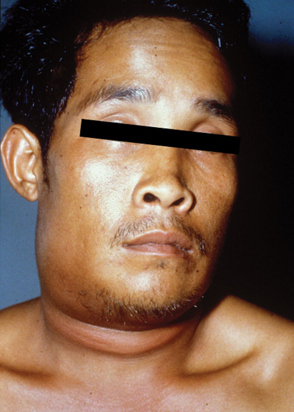 A 29-year-old man, 1 day after the onset of symptoms of oropharyngeal anthrax. Marked and painful swelling of the right side of the neck was present.