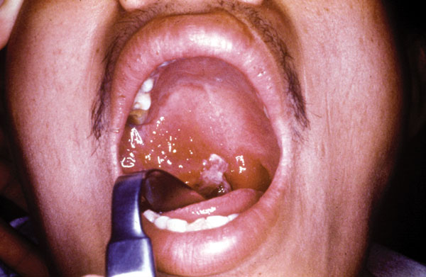 A 27-year-old man, 5 days after the onset of symptoms of oropharyngeal anthrax. Edema and congestion of the right tonsil extending to the anterior and posterior pillars of fauces as well as the soft palate and uvula were present. A white patch had begun to appear at the center of the lesion.