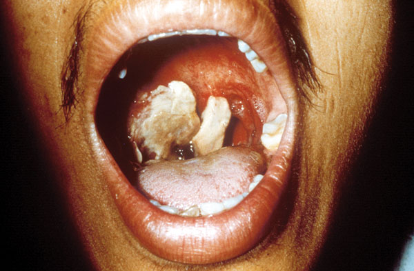 The same patient as in Figure 2. This picture is 9 days after the onset of symptoms of oropharyngeal anthrax. The white patch had developed into a pseudomembrane covering the lesion.