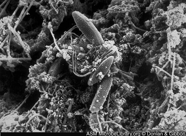 Scanning electron micrograph of a native biofilm that developed on a mild steel surface in an 8-week period in an industrial water system. Rodney Donlan and Donald Gibbon, authors. Licensed for use, American Society for Microbiology MicrobeLibrary. Available from: URL: http://www.microbelibrary.org/