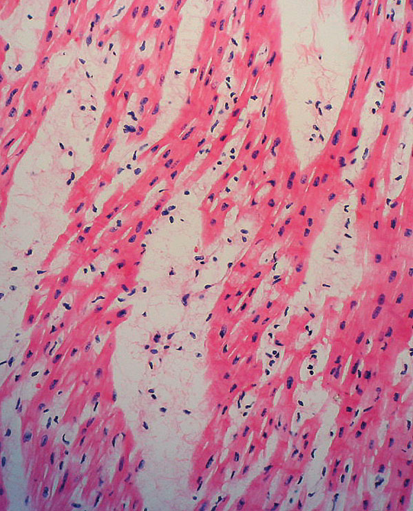 Tissue section of heart showing lymphocytic infiltrate, interstitial edema, and myocardial necrosis. (Hematoxylin and eosin stain, original magnification x200).