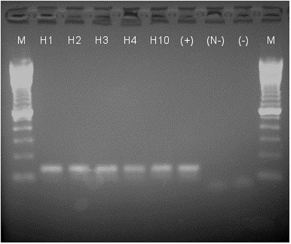 Results on 1.5% agarose gel of reverse tranferase–polymerase chain reaction (RT-PCR) products stained with ethidium bromide and imaged under UV light. M: 100-bp marker; H1–4, H10: horses 1–4 and 10; (+): positive control viral RNA, 1.8 x 102 PFU amplified; (N-): negative control for nested PCR (-); negative control from single round RT-PCR. All horse samples and the positive control show a band at the expected size (134 bp), and negative controls show only the primers (below 100 bp).