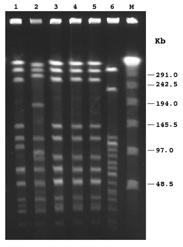 Pulsed-field gel electrophoresis patterns of ApaI-digested chromosomal DNAs of Haemophilus influenzae isolates. Lanes 1–5, H. influenzae type e (Hie) isolates, respectively, from patient nos. 1–5; lane 6, H. influenzae type b (Hib) strain belonging to one of the subclones endemic in Italy (9); M, λ ladder pulsed-field gel marker with molecular weights indicated in kilobases (kb) at the right. The isolates in lanes 3, 4, and 5 showed indistinguishable profiles (pattern 1); the isolate in lane 1 w