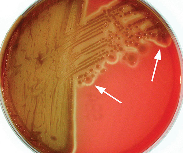 "Photorhabdus isolate from patient 2 after 5 days growth at room temperature on sheep blood agar. Arrows indicate the characteristic thin line of ""annular"" hemolysis surrounding the colonies."