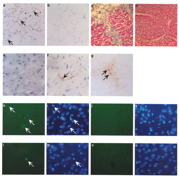 In vivo West Nile virus capsid (Cp) expression induces apoptosis and inflammation in mice. TUNEL assay was performed on muscle cryosections harvested from mice injected with pcWNV-Cp-DJY (a) or pcDNA3.1 (b). Hematoxylin/eosin staining was performed on mouse tibialis muscle cryosections harvested from mice injected with pcWNV-Cp-DJY (c) or pcDNA3.1 (d) at 48 h postinjection (magnification: 200X [a, b] and 40X [c,d]). Immunohistochemical analysis was performed for detection of WNVCp-DJY protein expression in mouse brain injected with pcDNA3.1 or pcWNV-Cp-DJY as detected with horseradish peroxidase (HRP) (e,f, respectively). TUNEL assay on mouse brain cryosections harvested from pcWNV-Cp-DJY injected mouse was detected with HRP (g) (magnification: 300X [e–g]). Immunohistochemical studies were performed for detection of WNV-Cp-DJY protein expression in mouse brain injected with pcWNV-Cp-DJY or pcDNA3.1 as detected by fluorescein isothiocynate stain (h, i, and j, k, respectively). TUNEL assay on mouse brain cryosections harvested from pcWNV-Cp-DJY–injected mice (l,m) or pcDNA3.1-injected mice as detected with fluorescein isothiocyanate (n,o). WNV-Cp-DJY protein expressing His-positive cells or TUNEL-positive cells were visualized under ultraviolete microscope (h or l, respectively). Nuclear staining for WNV-Cp-DJY– or pcNDA3.1-transfected cells was visualized with appropriate filters (i, m or k, o, respectively) (magnification: 630X [h through o]).