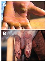 Thumbnail of Lesions from suspected Araçatuba virus on hand of dairy farm worker (milker) (A) and teats of cow (B).