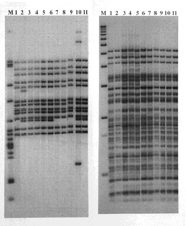 Restriction fragment length polymorphism patterns of Mycobacterium tuberculosis isolates from 11 patients residing in two geographically contiguous counties, Arkansas, 1992–1998. IS6110 patterns are shown on the left and polymorphic GC-rich sequence on the right. Lane M shows M. tuberculosis strain H37Rv DNA marker (left) and 1-kb DNA ladder (right). Lane 1, isolate from patient 11; Lane 2, patient 13; Lanes 3–6, patients 4, 1, 3, and 2; Lanes 7–9, patients 10, 9, and 8; Lane 10, patient whose isolate differed by three bands and was not included in the study; and Lane 11, patient 5.
