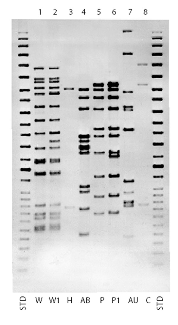 Insertion sequence (IS) 6110 Southern blot hybridization patterns for major multidrug-resistant Mycobacterium tuberculosis strains, New York City, 1995-1997. STD, standard.