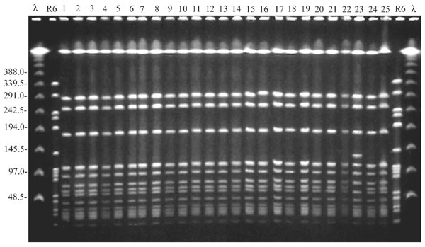 Pulse-field gel electrophoresis of study isolates obtained during the first survey on December 1997 from residents and staff. Lambda ladder and the DNA of the reference Streptococcus pneumoniae strain R6, digested by SmaI, were used as molecular weight markers. The gel includes 25 representative MRSA isolates. All isolates but one show an indistinguishable banding pattern, thus representing the outbreak strain. Isolate number 23 shows a closely related pattern (one band difference) and is considered to belong to the outbreak strain.