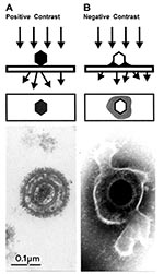 Thumbnail of Comparison of herpesvirus appearance after positive and negative stain electron microscopic. A. Positive staining. Samples undergo a lengthy process of fixation, incubation with heavy metal ions (osmium, uranyl), dehydration, embedment, ultrathin sectioning, and staining. Chemical moieties in the object show differential affinities for the heavy metal stains, resulting in a clear outline of the viral bilayer envelope, viral envelope proteins, nucleocapsid, and the dense nucleic acid