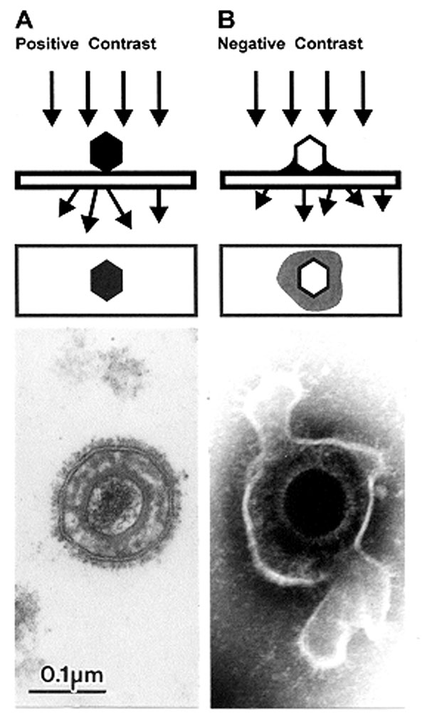 Comparison of herpesvirus appearance after positive and negative stain electron microscopic. A. Positive staining. Samples undergo a lengthy process of fixation, incubation with heavy metal ions (osmium, uranyl), dehydration, embedment, ultrathin sectioning, and staining. Chemical moieties in the object show differential affinities for the heavy metal stains, resulting in a clear outline of the viral bilayer envelope, viral envelope proteins, nucleocapsid, and the dense nucleic acid containing c