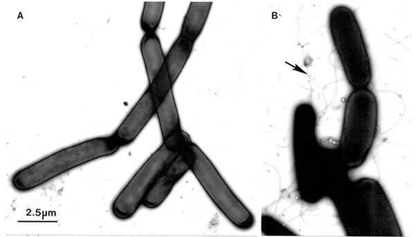 A. A colony of Bacillus anthracis was suspended, inactivated, and negatively contrasted with aqueous uranyl acetate, as described for Figure 4. The microorganisms, which grow in long chains, do not have flagella. B. The ubiquitous B. subtilis may also grow as long chains. However, in contrast to B. anthracis, the B. subtilis cells show distinct flagella (arrow). Bar = 2.5 μm.