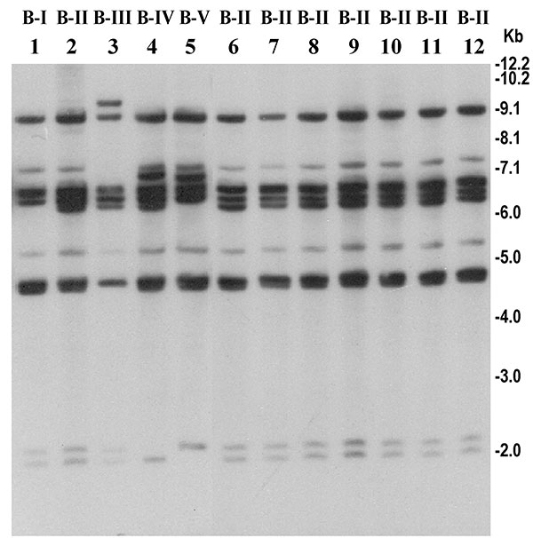 Southern hybridization analysis of rRNA genes in Vibrio cholerae O139 strains isolated from the recent epidemic and comparison with representative O139 strains isolated between 1992 and 1998. Genomic DNA was digested with BglI and probed with a 7.5-kb BamHI fragment of the Escherichia coli rRNA clone pKK3535. Lanes 1–6 represent O139 strains isolated from 1992 to 1998; lanes 6–12 represent O139 strains isolated from the recent epidemic in Bangladesh. Designated ribotypes corresponding to each restriction pattern are shown on top of the corresponding lane. Numbers indicating molecular sizes of bands correspond to 1-kb DNA ladder (Bethesda Research Laboratories, Bethesda, MD) used as molecular size markers.