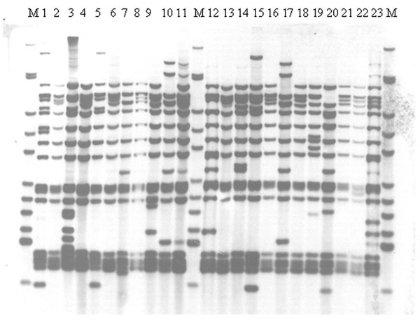 IS6110 restriction fragment length polymorphism analysis of isolates from a dominant variable number tandem repeat group of Beijing family isolates at all sites, Samara, Russia. M indicates Mycobacterium tuberculosis strain MT14323. Isolates were from all five sites including the prison (tracks 13, 16,18, and 20).