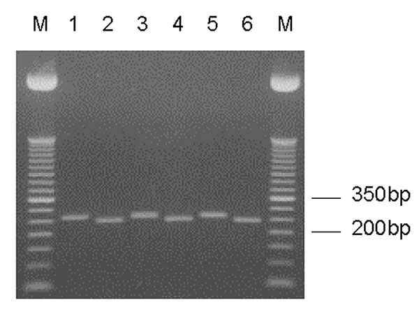 Entamoeba moshkovskii–specific nested SSU rDNA polymerase chain reaction (PCR) products. Odd- and even-numbered lanes represent undigested and XhoI-digested PCR products, respectively. Lanes 1/2, E. moshkovskii Laredo; lanes 3/4–5/6, DNA from stool samples. M, a 50-bp DNA ladder (Invitrogen Corp.).