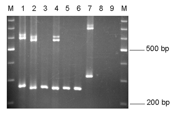 EmR polymerase chain reaction products. Lane 1, Entamoeba moshkovskii Laredo; lane 2, E. moshkovskii ICDDRB:717; lanes 3–6, E. moshkovskii–positive stool DNA samples; lane 7, E. moshkovskii FIC; lane 8, E. histolytica HM-1:IMSS; and lane 9, E. dispar SAW760. M, a 100-bp DNA ladder (Promega).