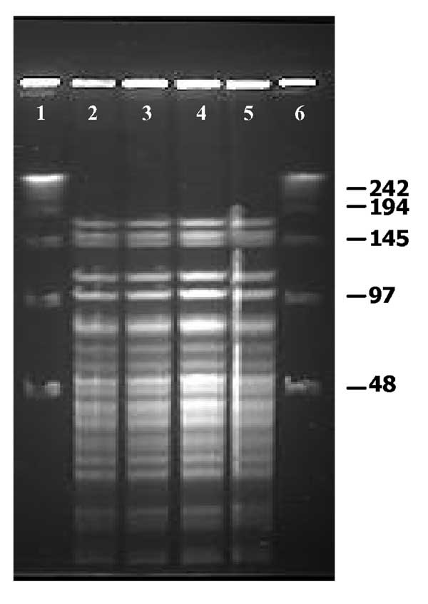 Pulsed-field gel electrophoresis profiles of ApaI-digested genomic DNA of Weissella confusa clinical isolates. Lanes 1–4: Isolates from intestine, brain, spleen, and liver, respectively.