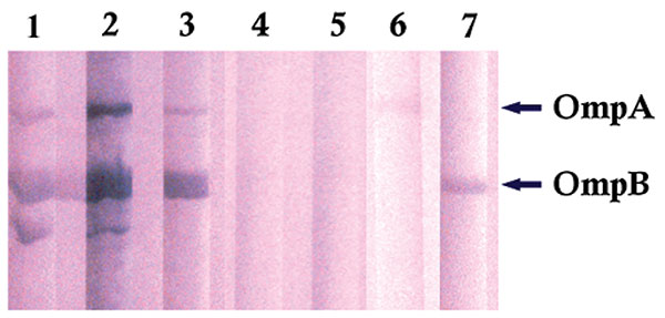 Immunoblot of Rickettsia africae antigens with R. africae–positive and –negative patient serum samples. Lanes 1–3: R. africae–positive patients' serum samples; lanes 4–5: R. africae–negative patients' serum samples; lane 6: anti–OmpA monoclonal antibody; lane 7: anti–OmpB monoclonal antibody.