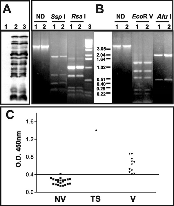 Characterization of the pustular fluid and serologic responses to vaccinia virus antigens. A) Western blot analysis of BSC-40 cells mock-infected (1); infected with vaccinia virus WR (2); or infected with 20 μL of the pustular fluid (3). Molecular weights are expressed in kDa. B) Polymerase chain reaction–restriction fragment length polymorphism analysis of vaccinia virus genome regions. Amplicons corresponding to the A24R gene or the segment between the B9R and B14R genes were digested or not (