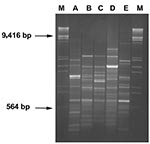 Thumbnail of RAPD profiles of blaVIM positive strains. Amplification products (8 μL) obtained with primer 208 (5′-ACGGCCGACC-3′) (14) were run on 2% agarose gel. Lanes A-E: RAPD-types as indicated in Table 1. Lanes M: λDNA digested with EcoRI and HindIII.