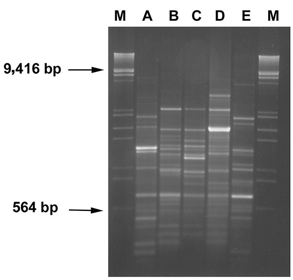 RAPD profiles of blaVIM positive strains. Amplification products (8 μL) obtained with primer 208 (5′-ACGGCCGACC-3′) (14) were run on 2% agarose gel. Lanes A-E: RAPD-types as indicated in Table 1. Lanes M: λDNA digested with EcoRI and HindIII.
