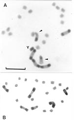 Thumbnail of Gonial mitotic prometaphases in male (A) and female (B) specimens of Triatoma infestans from non-Andean regions. Scale bar = 10 μm. A: Most common C-banding pattern detected in non-Andean region (BB BB AA). This pattern is constituted by four autosomes with a C-block in both chromosomal ends (B morph) and two chromosomes with a C-block in only one telomere (A morph) indicated by arrowheads. The Y chromosome appears C-heterochromatic. The other 14 autosomes and the X chromosome are C