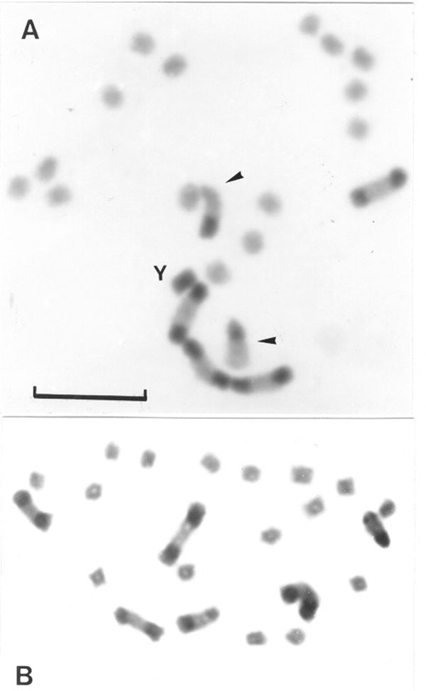 Gonial mitotic prometaphases in male (A) and female (B) specimens of Triatoma infestans from non-Andean regions. Scale bar = 10 μm. A: Most common C-banding pattern detected in non-Andean region (BB BB AA). This pattern is constituted by four autosomes with a C-block in both chromosomal ends (B morph) and two chromosomes with a C-block in only one telomere (A morph) indicated by arrowheads. The Y chromosome appears C-heterochromatic. The other 14 autosomes and the X chromosome are C-negative (eu