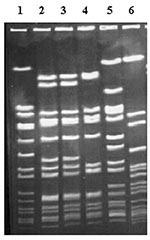 Thumbnail of Pulsed-field gel electrophoresis of selected isolates, demonstrating predominant and secondary types. Lane 1, Staphylococcus aureus NCTC 8325, used as DNA molecular weight reference marker; lanes 2 and 3, clinical isolates of type A13; lane 4, clinical isolate of type A1; lane 5, clinical isolate of type B2; lane 6, clinical isolate of type H.