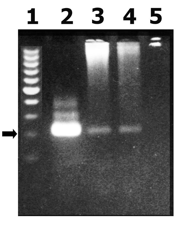 Gel electrophoresis analysis of a polymerase chain reaction (PCR) product corresponding to a highly repetitive 220-bp Trypanosoma cruzi nuclear fragment. 1: molecular weight standards, 2: T . cruzi nuclear 220-bp PCR product, 3 and 4: PCR product from patients blood, 5: PCR negative control (arrows correspond to 220 bp).