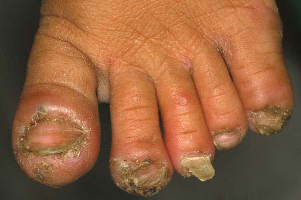 Left foot of a 6-year-old girl. The first, second, third, and fifth toe are infected with Tunga penetrans. These toes are inflamed, and the second and the third toe are distorted by severe edema. The first toe shows hyperkeratosis. The nails of the first, second, and fifth toe are deformed, and the nail of the third toe is falling off. A flea is trying to penetrate the skin at the edge of the pustule on the medial side of the second toe (11 clockwise). An ulcer has formed above the proximal phal