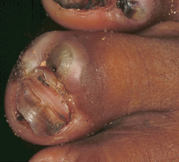 Fourth toe of a 50-year-old women. The nail is lifted up by a lesion. An abcess has formed near the nail wall, and the toe is distorted because of intense edema.