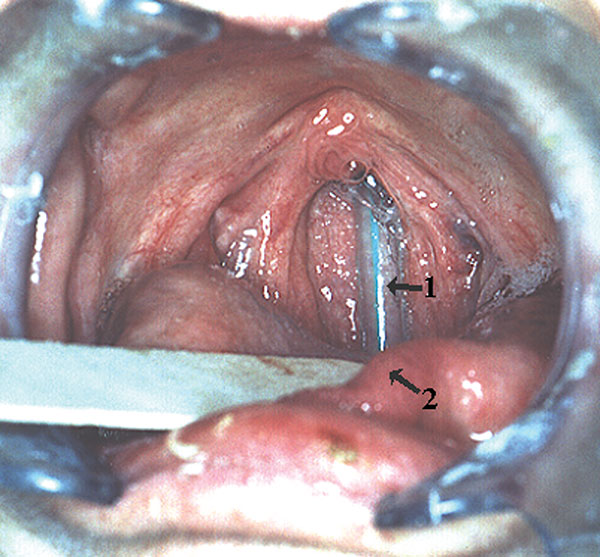 Nasogastric tube embedded in the nasopharynx. 1, nasogastric tube; 2, dorsum of tongue.