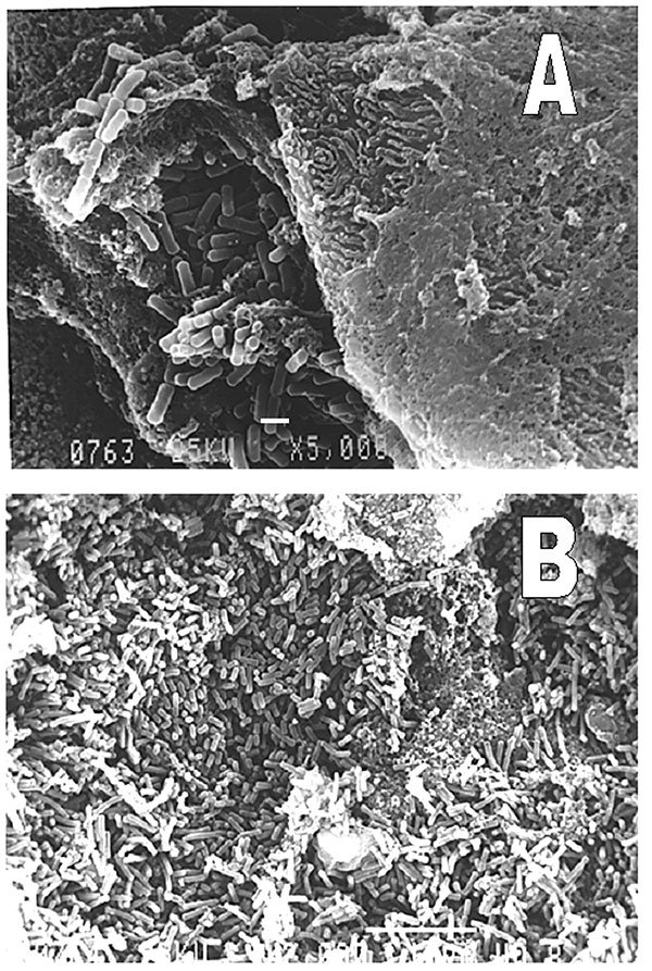 Representative biofilms on nasogastric tubes showing bacterial organisms with typical form of Pseudomonas aeruginosa. Scanning electronic microscope. A, scale bar, 1 µm; B, scale bar, 10 µm.