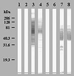 Thumbnail of Western blot showing seroconversions in immunoglobulin (Ig) G (Lanes 1, 3, 5, 7) and IgM (Lanes 2, 4, 6, 8) of patient 2 against Bosea massiliensis (Lanes 1 to 4) and patient 9 against Legionella anisa (Lanes 5 to 8). Lanes 1, 2, 5, 6: acute-phase sera; Lanes 3, 4, 7, 8: convalescent-phase sera.