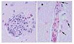 Thumbnail of Perivascular changes observed within the brain of alligators infected with West Nile virus (400x). A. Perivascular infiltrates were composed of primarily lymphocytes, plasma cells, and macrophages in the hatchling alligator. B. Perivascular infiltrates were composed of primarily heterophils (arrows) in juvenile alligators.