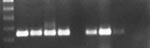 Thumbnail of West Nile virus (WNV) reverse transcription-polymerase chain reaction results from epizootic die-offs in farm-raised alligators. The expected amplicon is 248 bp. Lane 1, a 100-bp molecular weight ladder. Lane 2, the positive WNV control. Lane 3, fresh tissue samples from a juvenile alligator in the 2002 epizootic. Lane 4, virus isolation cell homogenate from a juvenile alligator in the 2002 epizootic. Lane 5, horsemeat that was being fed to alligators during the 2002 epizootic. Lane