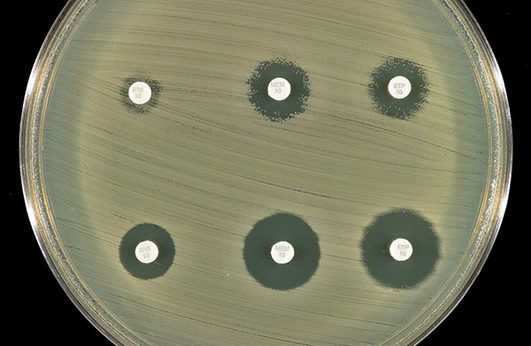 Effect of addition of clavulanic acid (10 μL of 1,000 μg/mL) to the zones of inhibition of the three carbapenem disks. Top row (left to right): imipenem, meropenem, and ertapenem disks without clavulanic acid. Bottom row (left to right): imipenem, meropenem, and ertapenem disks with clavulanic acid.
