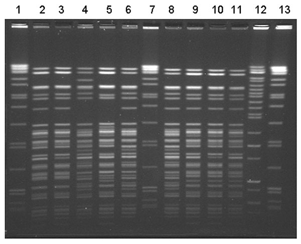 Pulsed-field gel electrophoresis (PFGE) patterns of Yersinia enterocolitica isolates from patients in this outbreak associated with chitterlings. Ten isolates from nine patients were available for typing. Seven distinct BlnI PFGE patterns were noted. Three infants had pattern #1 (lanes 9–11). Two infants shared pattern #2 (lanes 2 and 3). One patient had two distinct isolates (lanes 6 and 12). The molecular size standard is located in lanes 1, 7, and 13.