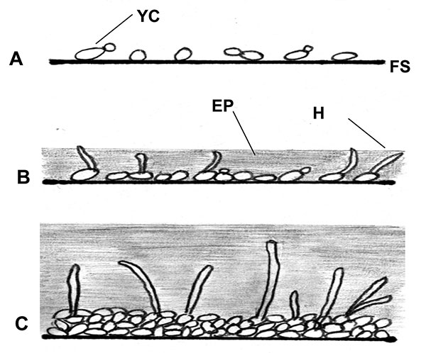 Illustration of biofilm development in Candida albicans and C. dubliniensis; A, early 0–11 h; B, intermediate 12–30 h; C, mature 38–72 h; FS, flat surface; YC, yeast cell; H, hyphae; EP, exopolymeric matrix.