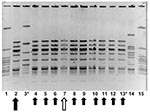 Thumbnail of Molecular epidemiology of group A streptococcus (GAS) strains in outbreak. Pulsed field gel electrophoresis, demonstrating relatedness of group A streptococcal isolates from an person with clinical illness from GAS, a person with chronic colonization with GAS, and asymptomatically colonized facility staff and residents. Lanes 1 and 15 contain an ATCC quality control strain. Lane 14 contains an isolate from another nursing facility, unrelated to outbreak 1. The isolate in lane 2 (lar
