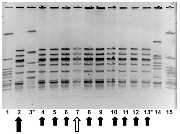 Molecular epidemiology of group A streptococcus (GAS) strains in outbreak. Pulsed field gel electrophoresis, demonstrating relatedness of group A streptococcal isolates from an person with clinical illness from GAS, a person with chronic colonization with GAS, and asymptomatically colonized facility staff and residents. Lanes 1 and 15 contain an ATCC quality control strain. Lane 14 contains an isolate from another nursing facility, unrelated to outbreak 1. The isolate in lane 2 (large solid arro