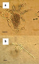 Thumbnail of Zoosporangia of strain 98-1810/3 visible as transparent spherical bodies growing in lake water on (a) freshwater arthropod and (b) algae. Bars = 30 μM.
