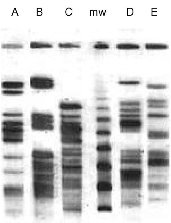 Restriction pattern (XbaI) by pulsed-field gel electrophoresis of the five extended-spectrum, cephalosporin-resistant Escherichia coli clones (A, B, C, D, E). mw: marker.