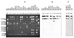Thumbnail of Plasmid profile (A) and hybridization with CTX-M-9 probe (B) and CMY-2 probe (C). The studied isolates, by lane, are: 1: P5, 2: P6, 3: P6T (transconjugant of P6), 4: P9, 5: P10-1, 6: P12-1, 7: P12-2, 8: P14, 9: P15, 10: P18-1, 11: P19, 12: F2, 15: P10-2, 16: P18-2, 17: P18-2T (transconjugant of P18-2), 18: F3-1, 13, and 14: plasmid control strains E. coli 678 CECT (= NCTC 50193 with the following plasmid sizes: 54.38, 7.30, 5.56, 5.14, 3.98, 3.08, 2.71, and 2.06 kb) and E. coli 679
