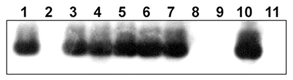 Southern blot analysis of DNA from rabbit Escherichia coli isolates by using a Shiga toxin 1B (stx1B) probe from rabbit enterohemorrhagic E. coli (EHEC) O153:H-. Lane 1, E. coli O157:H7 DNA (EDL 933, human isolate, positive control); lane 2, No DNA; lanes 3–5, O153:H- DNA (rabbit isolates 01-3014, 02-3283, 02-3300, respectively); lanes 6 and 7, O153:H7 DNA (02-3446 and 02-3301); lanes 8 and 9, O145:H- DNA (02-3282 and 02-3055); lane 10, rabbit isolate of unknown O serotype (03-192); lane 11, O14