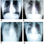 Thumbnail of Chest radiographs of index patient with severe acute respiratory syndrome (SARS). a, day 5 of symptoms; b, day 10; c, day 13; d, day 15.