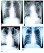 Thumbnail of Chest radiographs of two patients with severe acute respiratory syndrome (SARS). a–c: radiographs of patient 5 showing progression of changes. a, day 8 of symptoms; b, day 13 of symptoms, d, day 14 of symptoms. He died on day 19 of this illness. d, chest radiograph, taken on day 8 of symptoms, of patient 12, with right upper lobe infiltrates resembling pulmonary tuberculosis (TB) but laryngeal swab cultures for TB were negative.
